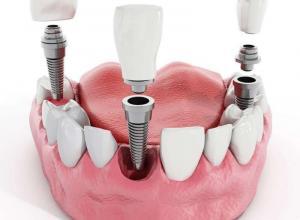 http://www.odontologiamt.com.br/assets/img/img-mpi/implante-dentario-1.jpg