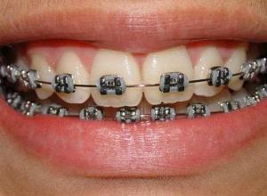 aparelho de dente preto
