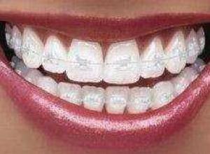 Aparelho de dente transparente