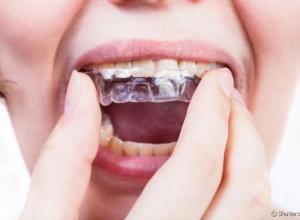 Aparelho móvel dentário