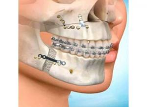 cirurgia buco maxilo