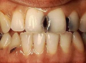 dente cariado