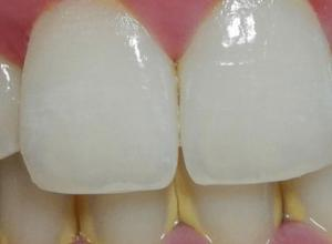 dente com tártaro
