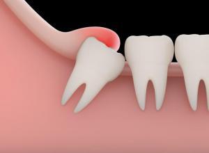 Dente infeccionado sintomas