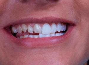 dentes de porcelana antes e depois