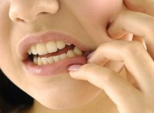 dentes molares nascendo sintomas