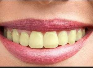 dentes muito amarelos