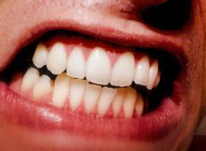 dor de dente sintomas