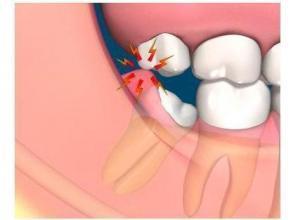dor de dente siso