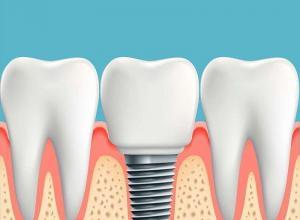 implante de dente valor
