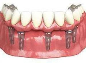 Implante dentário total