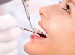 periodontia raspagem