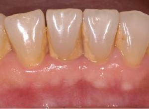 placa bacteriana no dente