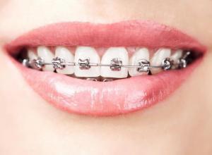 plano odontológico cobre aparelho