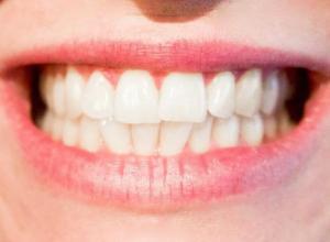 Plano odontológico cobre implante