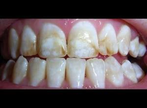 Tirar dor de dente