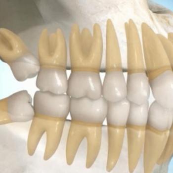 Arrancar dente siso