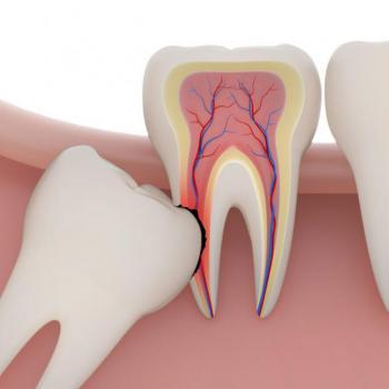 Dente doendo