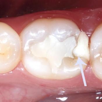 Dente obturado