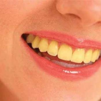 Dentes amarelados