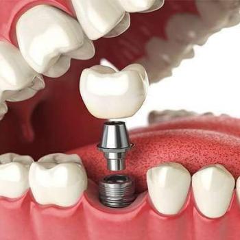 Preço médio de um implante dentário